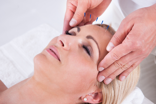 Kendall Facial Acupuncture
