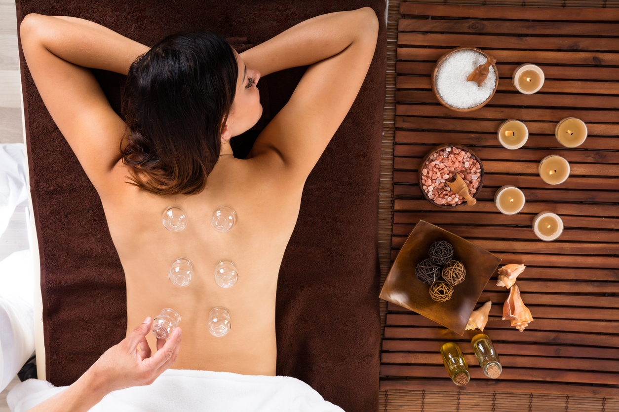 Relaxed Young Woman Receiving Cupping Treatment On Back